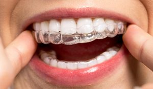 Invisalign, what to expected this 2019